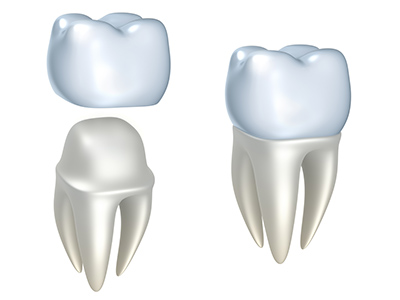 Dental crown model at Alexandra Garcia, DDS, MS in Houston, TX