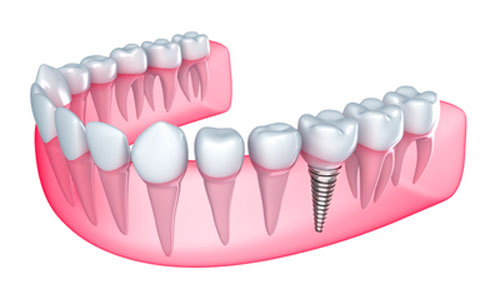 Cone Beam Technology Can Improve Your Results from Dental Implant Procedures