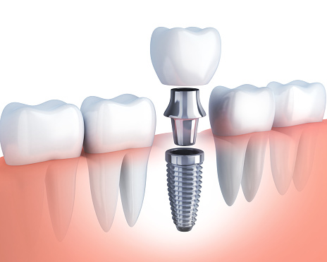 Rendering of a single dental implant with ceramic crown from Alexandra Garcia, DDS in Houston.