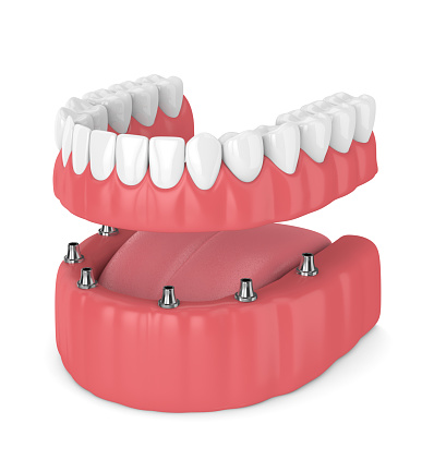 Rendering of a dental implant-supported overdenture at Alexandra Garcia, DDS, MS in Houston, TX