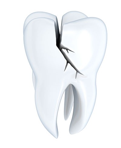 How an Onlay Can Protect a Cracked or Broken Tooth