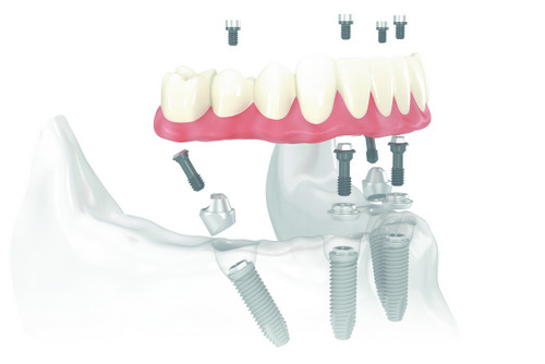 A skeletal model of All-on-4 dental implants being attached at Alexandra Garcia, DDS, MS in Houston, TX