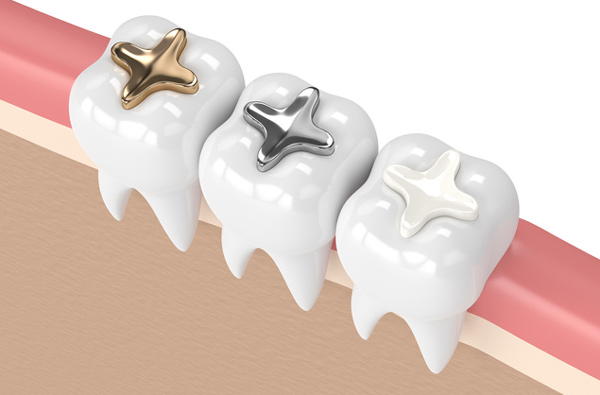 Rendering of teeth with 3 filling materials from Alexandra Garcia, DDS, MS in Houston, TX